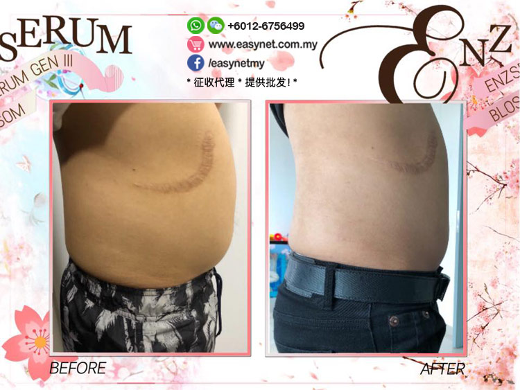 ENZ Serum III Sakura Slimming Gel 第三代樱花溶脂瘦身精华液160ml