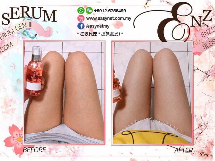 ENZ Serum III Sakura Slimming Gel 第三代樱花溶脂瘦身精华液160ml